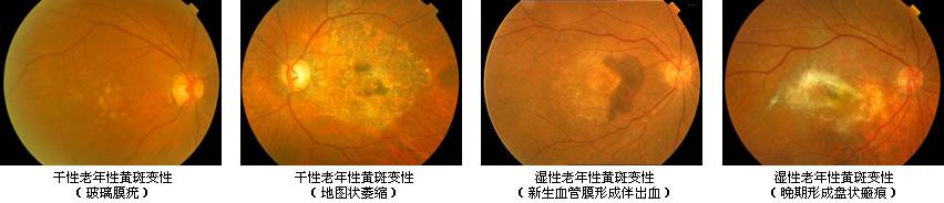 高度近视眼底_眼底黄斑病变治疗方法_上海和平眼科医院