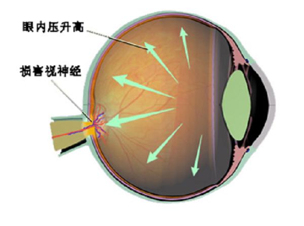 原发性开角型青光眼的早期症状