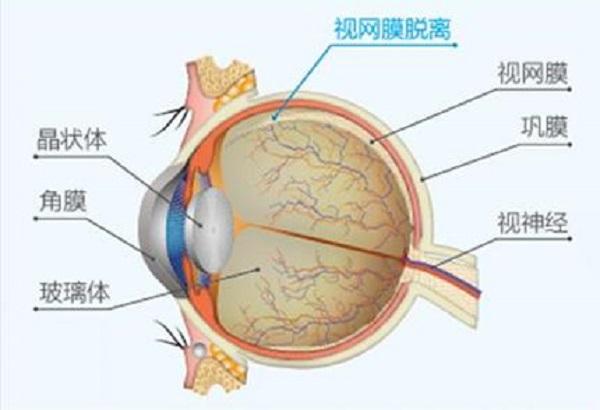 视网膜脱落,视网膜脱离,眼底病